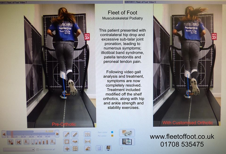 Fleet of Foot - Podiatry and Chiropody